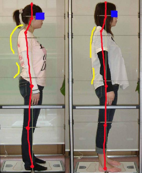 頚性神経筋症候群