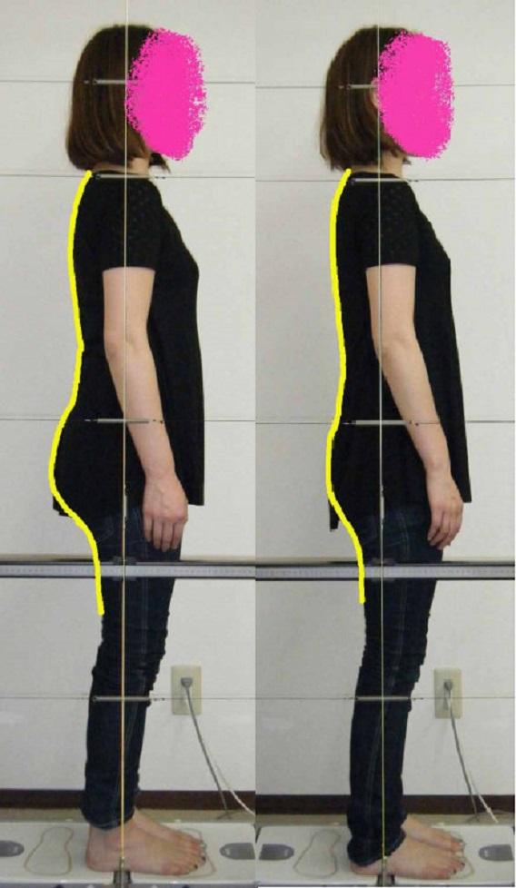 反り腰と出っ尻と腰痛
