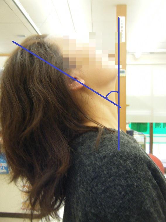 首の伸展が改善