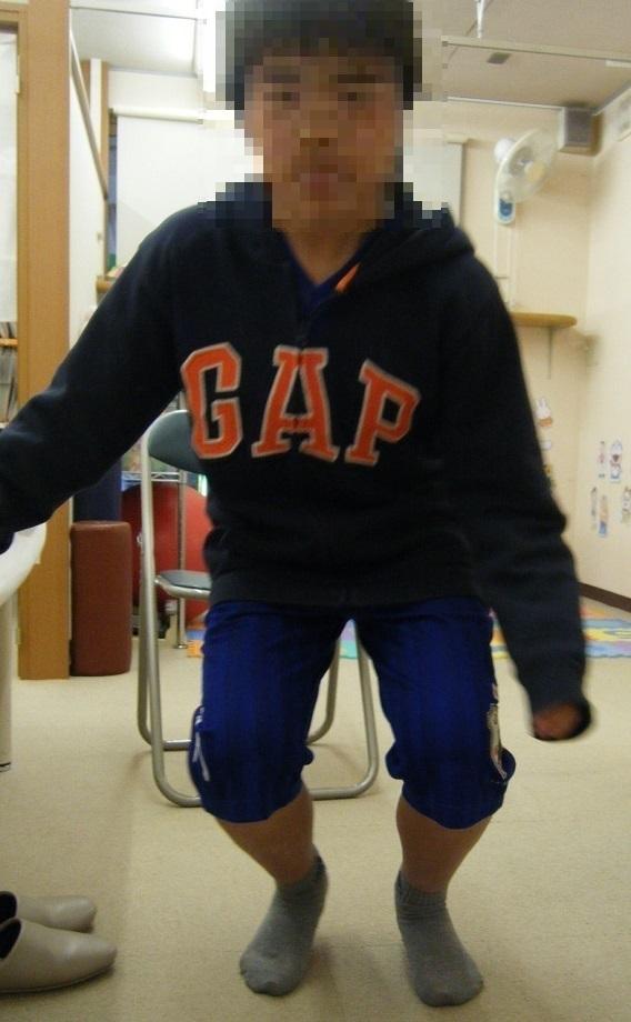 子どもの膝痛、オスグットシュラッター