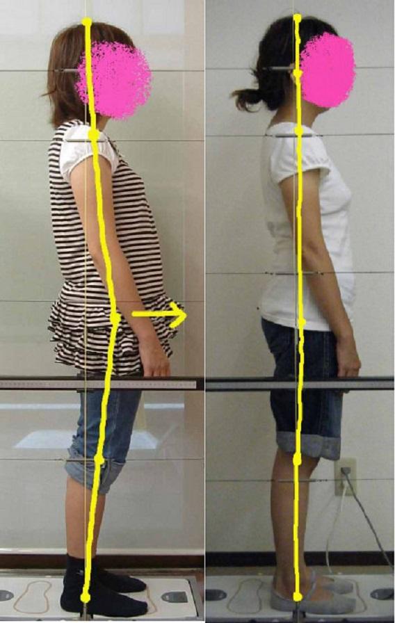 腰と膝の痛みの姿勢