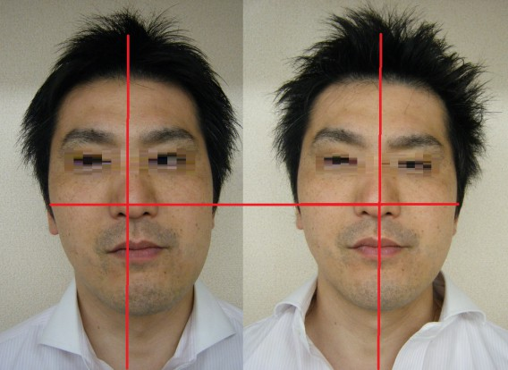 顎の歪みと肩こりの関係