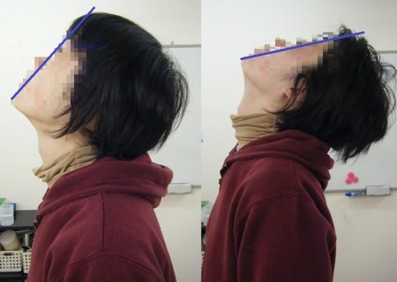 首の可動域が改善